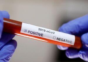 Cabo Frio registra mais dois óbitos por coronavírus