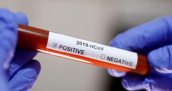 Araruama registra mais dois óbitos pelo novo coronavírus